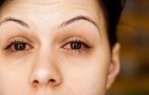 ochi rosii alergii
